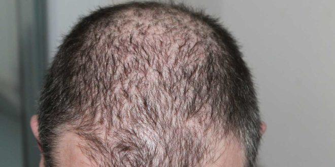 Bockshornklee als Mittel gegen Haarausfall