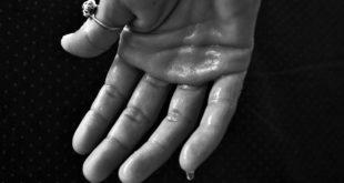 Bockshornklee gegen übermäßiges Schwitzen